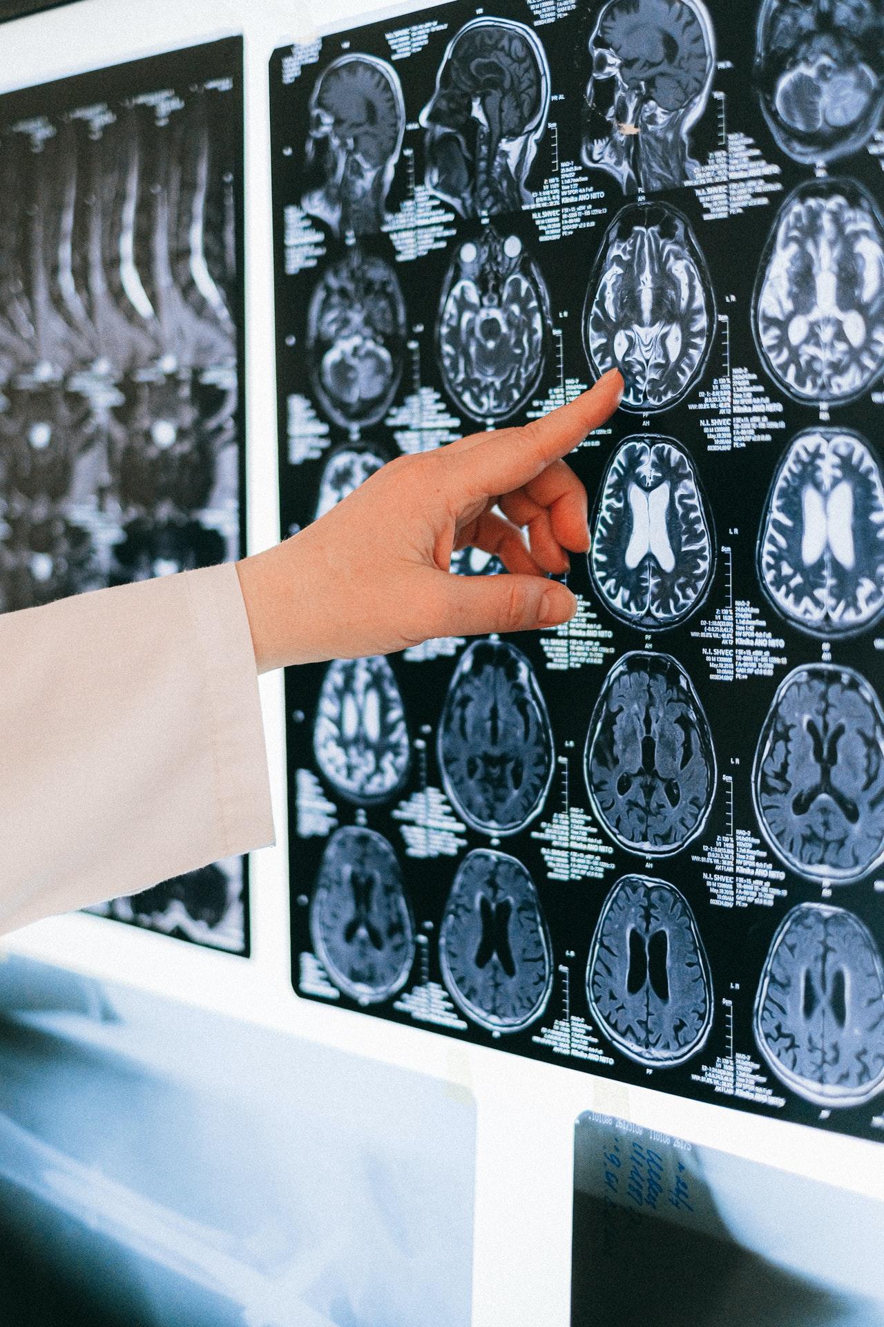 MRI & CAT Scans